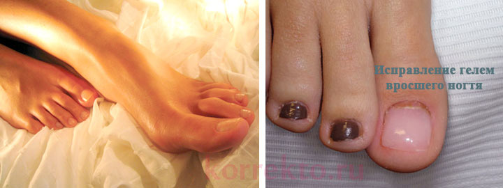 Покрытие ногтей гелем для лечения врастания