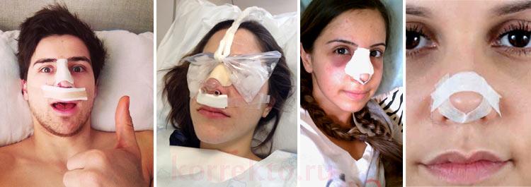 Реабилитация после коррекции носа