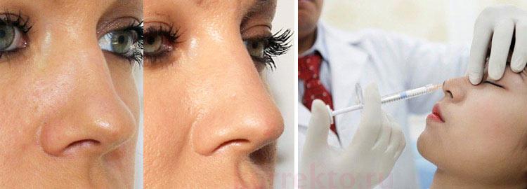 Результаты коррекции носа филлерами