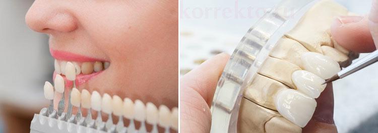 Установка виниров - исправление формы зубов