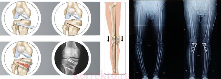 Коррекция формы ног с остеосинтезом кости