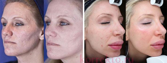 Удалить шрам на лице цена