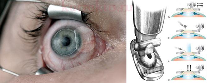 Операция на глаза по восстановлению зрения