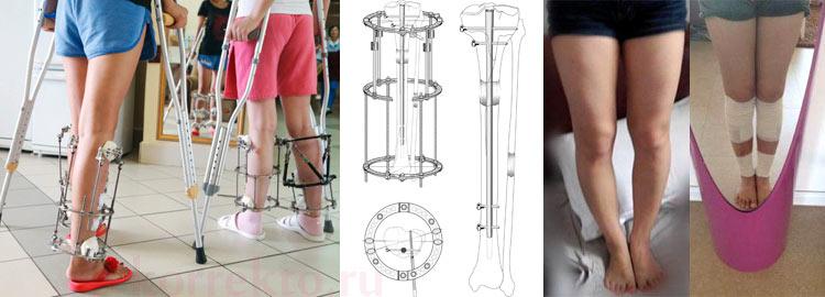Ортопедическая хирургия формы ног