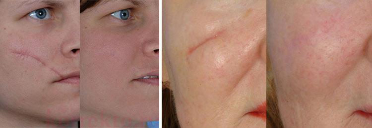Хирургическое устранение рубцов и шрамов