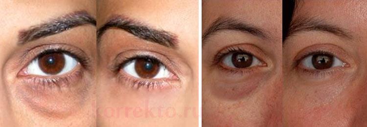 носослезная борозда коррекция фото до и после