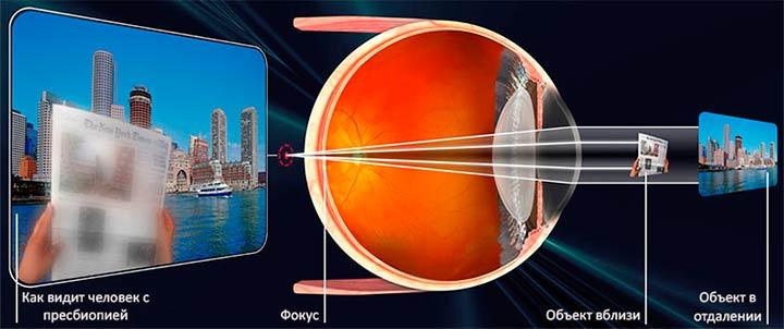 Как улучшить зрение реальный способ