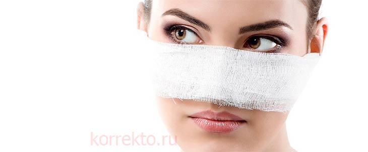 Ринопластика носа с горбинкой