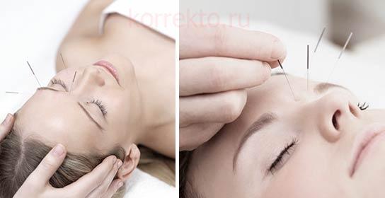 Иглоукалывание для профилактики морщин