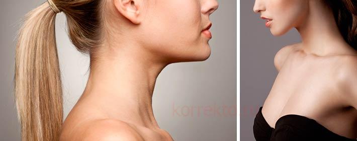 Как поддерживать шею с возрастными изменениями