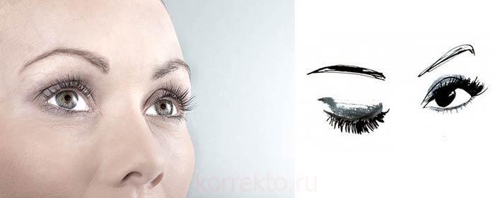 Что дает lash botox ресницам