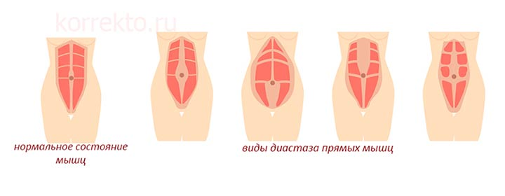 Виды диастаза
