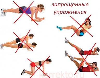 Запрещенные упражнения при диастазе