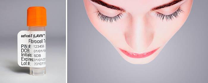 Коррекция лица и шеи фибробластами