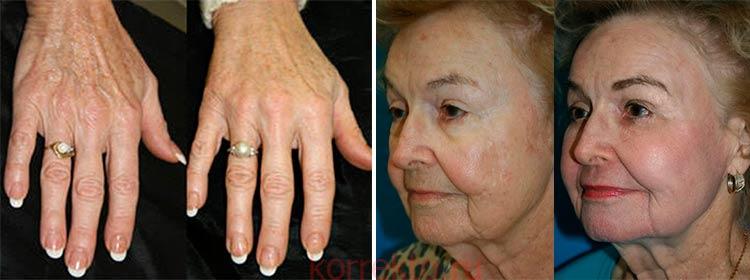 Применение фибробластов на стареющей коже