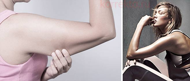 Как избавиться от дряблости рук