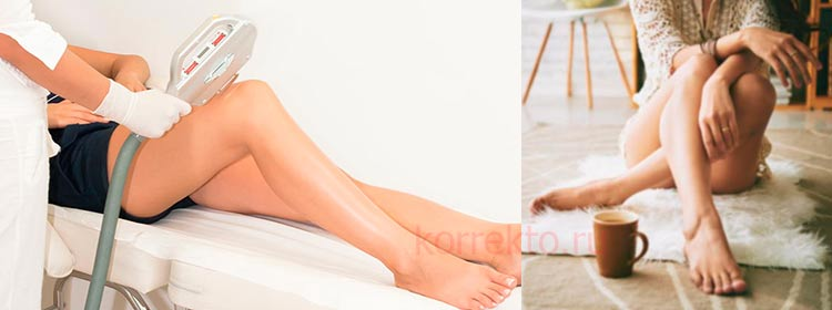 Как ухаживать за кожей после эпиляции