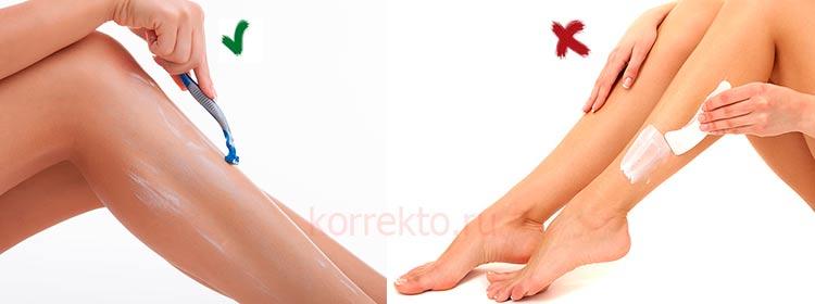 Можно ли брить ноги после лазерной эпиляции