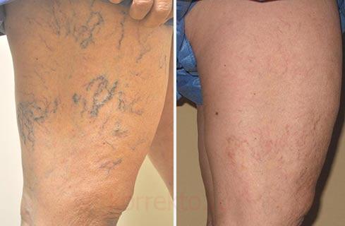 Могут ли быть осложнения после лазерного удаления варикоза