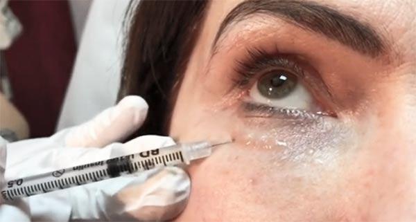 Уберет ли биоревитализация мимические морщинки у глаз