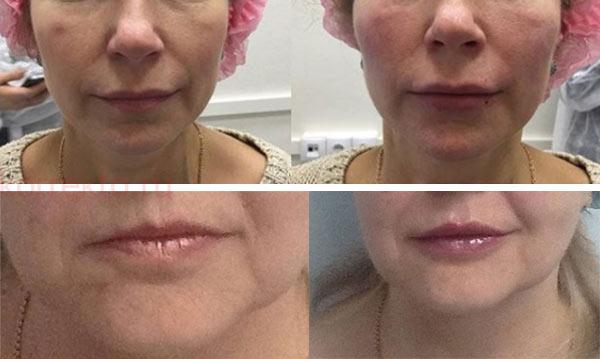 Возрастное увеличение губ