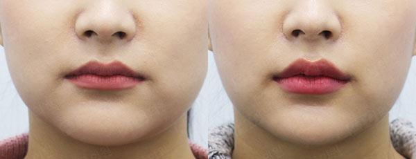 Губы до и после увеличения гиалуронкой