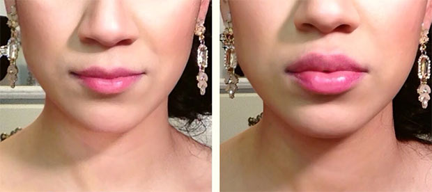 Как выглядят губы после увеличения