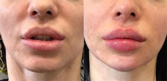 Как изменяются губы после увеличения гиалуроновым филлером