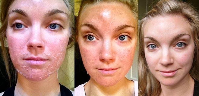 Процесс восстановления кожи после пилинга