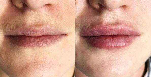 Фото губ до и после коррекции филлером