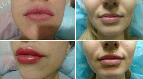 гиалуроновый филлер в губы