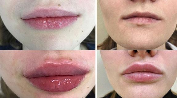 филлер в губы