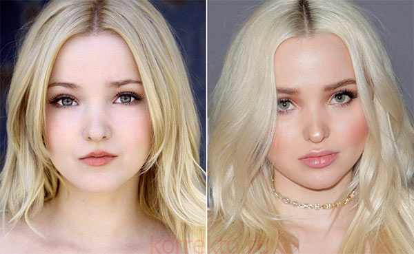 Dove Cameron lips