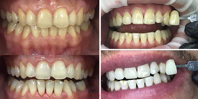 Какие зубы после отбеливания