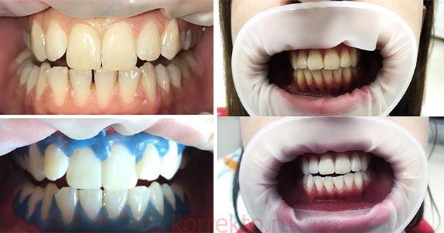 Отбеливание эмали зубов