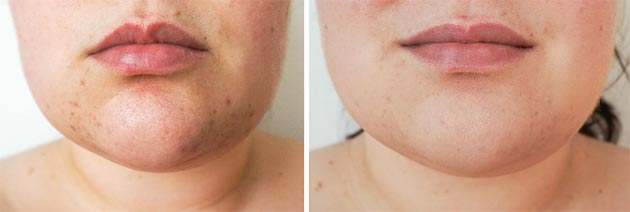 Как ухаживать за кожей после чистки лица