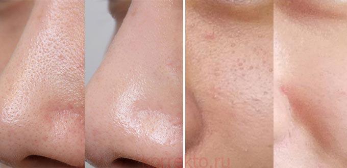 Лицо до и после чистки