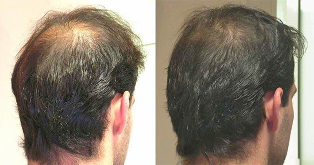 Мезотерапия волос у мужчин