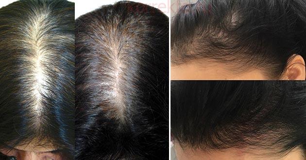 Результаты мезо волос