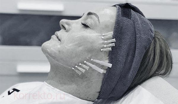 Реабилитационный переиод после постановки нитей для лица