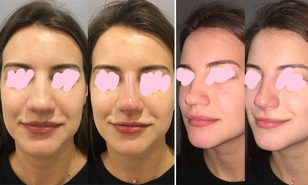 Какой результат после филлеров в нос