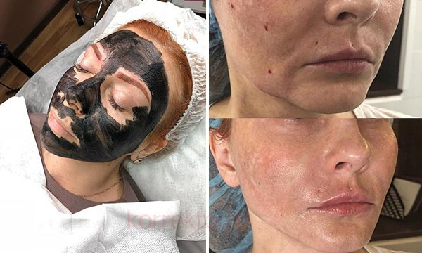 Как выглядит кожа после карбонового пилинга лица