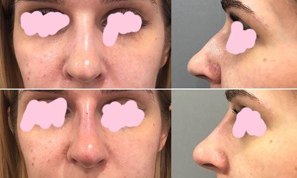 После филлеров для коррекции носа