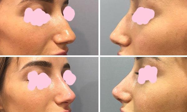 Эффективность филлеров для носа