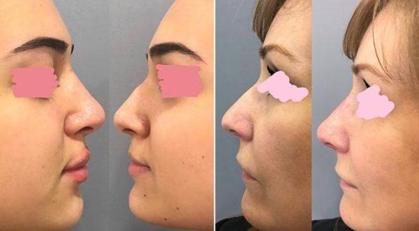 Реабилитация после контурной пластики носа