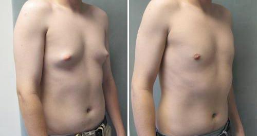 Уменьшение мужской груди