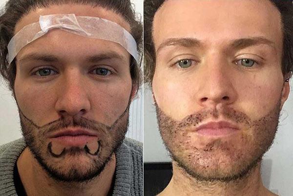 До и после пересадки бороды