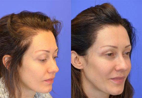 Как отрастают волосы после пересадки