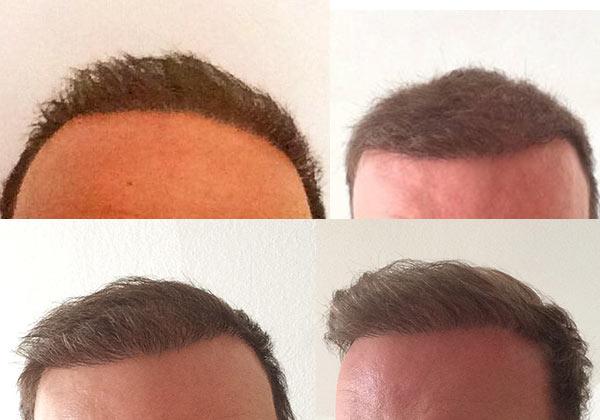 Как отрастают пересаженные волосы