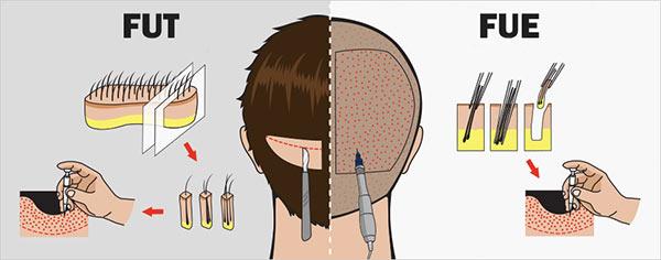 После пересадки волос